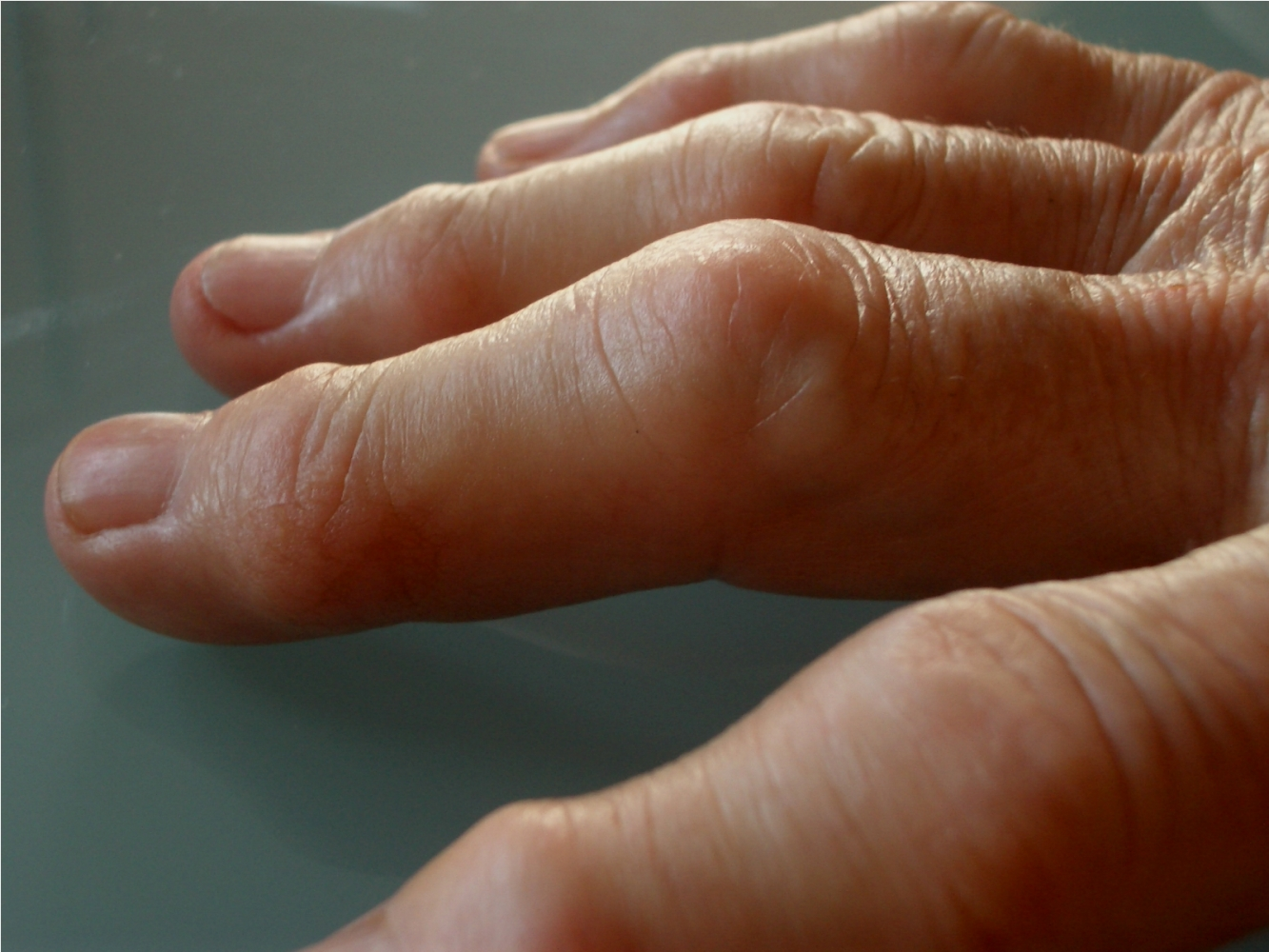 Artrite reumatoide: ora si cura con una compressa